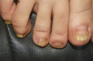 Грибок – очень жизнестойкая инфекция